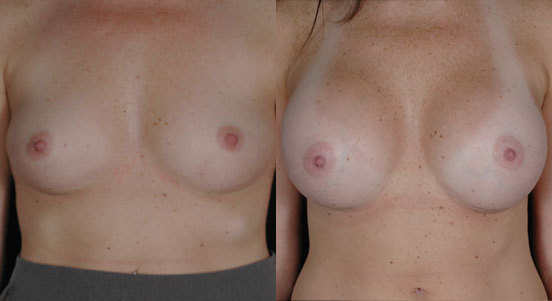 saline breast implants. Breast Augmentation Photos